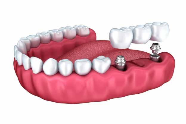 How Dental Bridges Work to Replace Missing Teeth | Nordel
